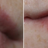 pharma hyaluron - volume lip booster