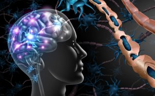 Skleróza multiplex: Čo všetko musíme o tejto zákernej chorobe vedieť?