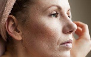 Ako odstrániť jazvy po akné a zbaviť sa tak spomienky na pubertu?