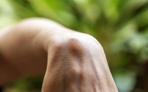Čo znamená hrčka na zápästí? Zisti, čo sú ganglionové cysty!