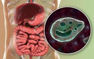 Balantidióza: Ako sa prejavuje táto črevná infekcia a čo ju spôsobuje?