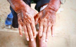 Čo je sklerodermia? Zisti, či patríš k tým, ktorých ohrozuje najčastejšie!