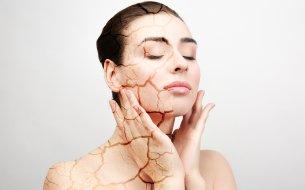 Suché miesta na tvári: Čo sa ti pokožka snaží naznačiť?