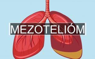 Agresívne a zriedkavé nádorové ochorenie: Kedy vzniká mezotelióm?