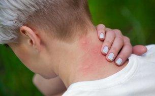 Ako ošetriť štípance od komárov? Takto zmierniš bolesť aj svrbenie!