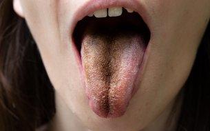 Vyrážky, svrbenie či sfarbenie: Vieš, čo prezrádza jazyk o zdraví?