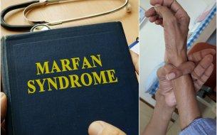 Čo je Marfanov syndróm? Pozor, poukazujú naň tieto príznaky!