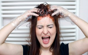 Ako dostať škvrny od farby na vlasy z kože? Skús osvedčené triky